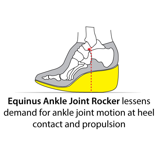 Equinus Ankle Joint Rocker